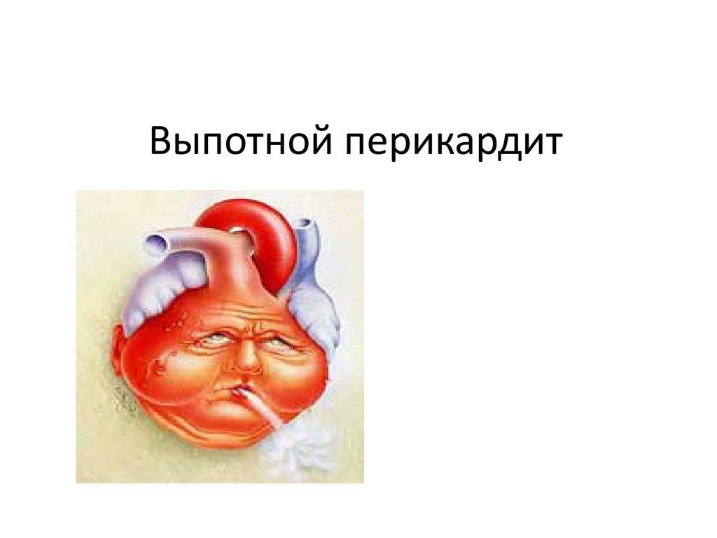 Выпотной перикардит (экссудативный перикардит) - презентация онлайн