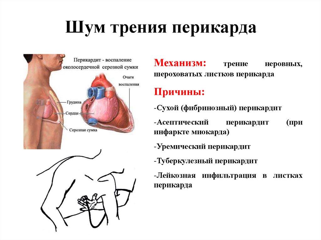 Посетители Поисковые инфаркт миокарда у подростков максимальный