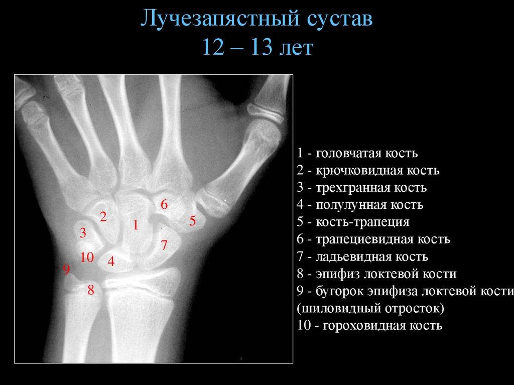 Артроз лучезапястного сустава симптомы и лечение