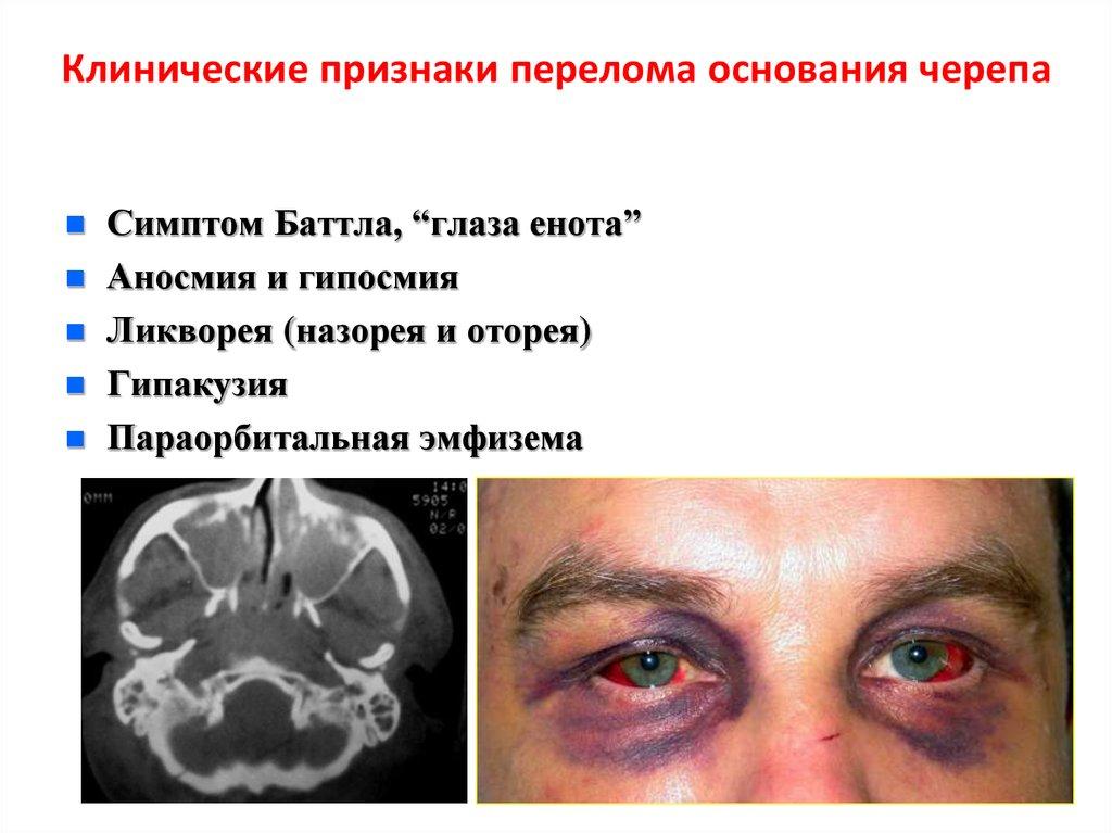 Черепно-мозговая травма - online presentation