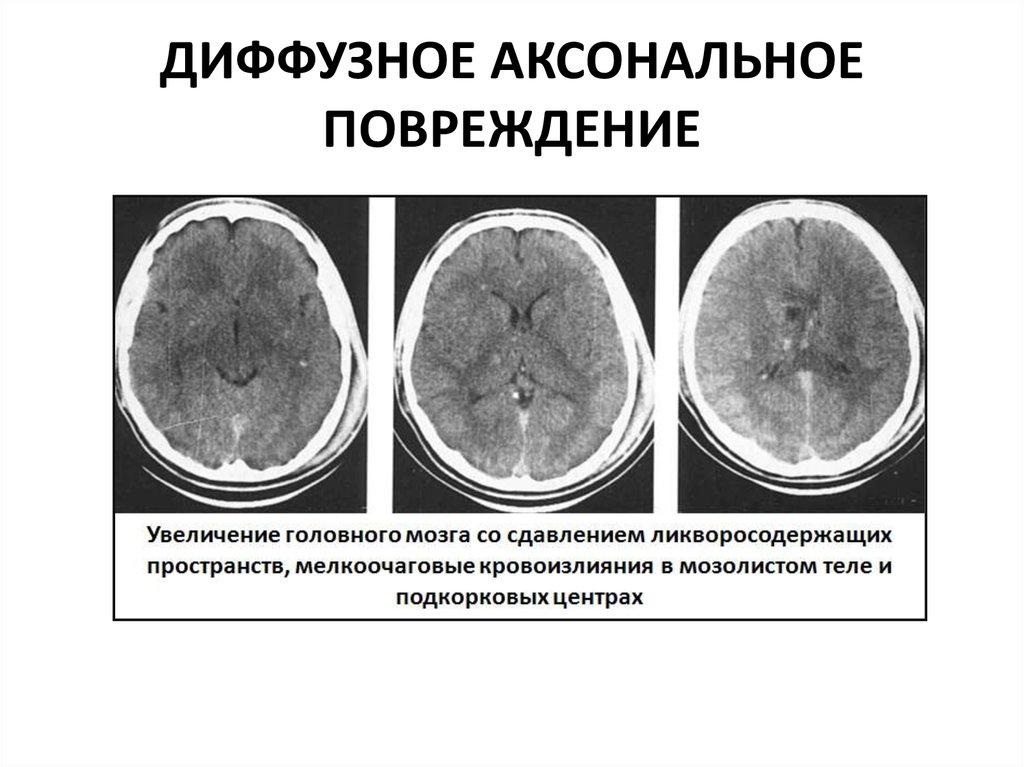 Диффузные изменения б а мозга