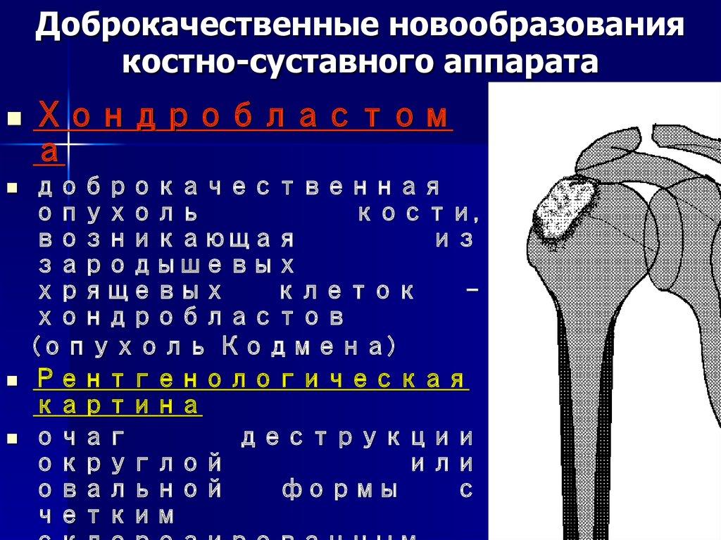Классификация опухолей костно-суставной системы жим стоя и плечевой сустав