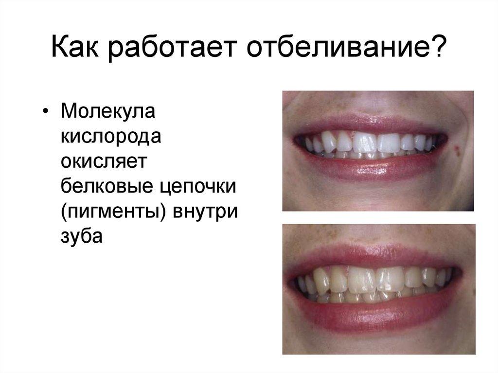 Отбеливание зубов презентация