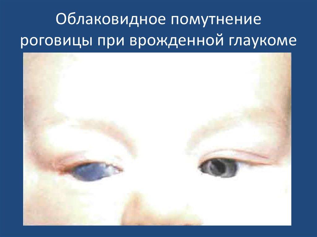 Облаковидное помутнение роговицы при врожденной глаукоме
