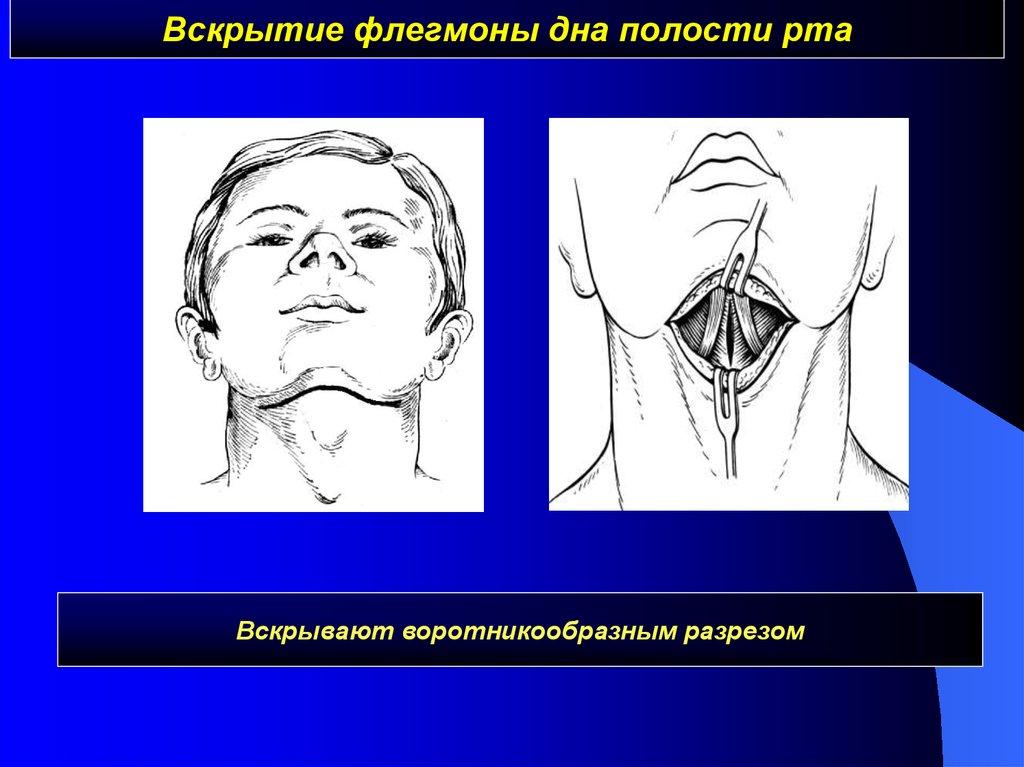 внешний слой флегмоны дна полости рта белье попробуйте поносить