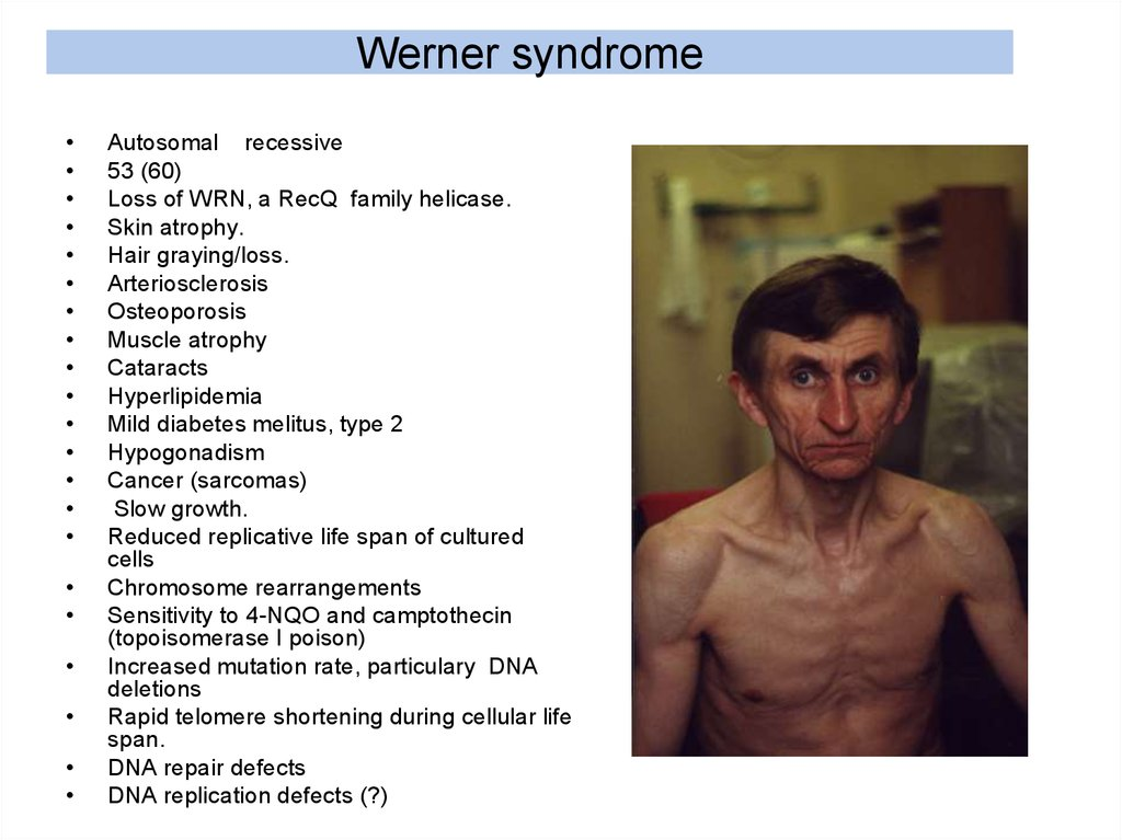 Accelerated aging diseases and their genetic causes ...