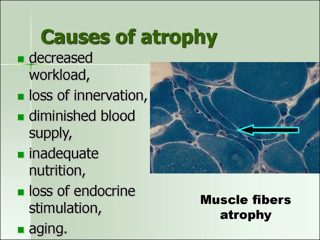 Causes of atrophy