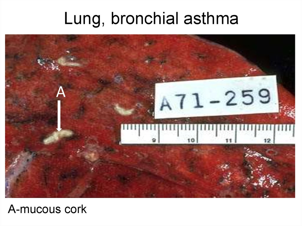 Lung, bronchial asthma