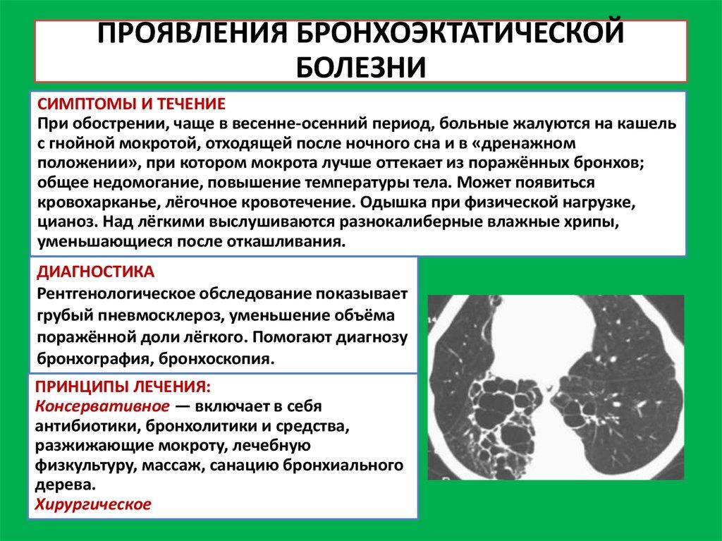 Профилактика бронхоэктатической болезни
