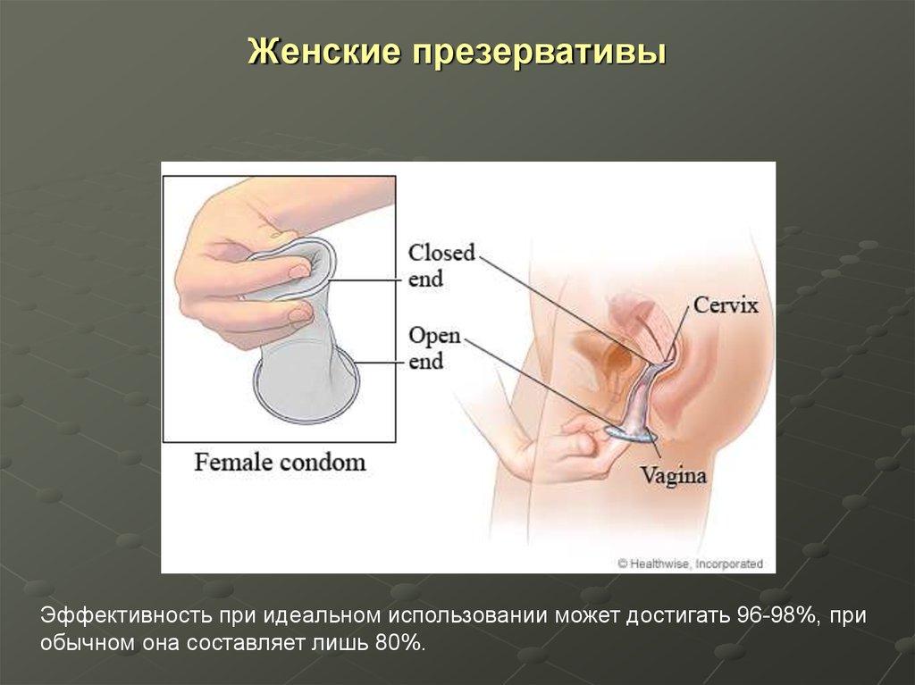 ispolzovanie-zhenskogo-prezervativa-devushke-uchastvovat