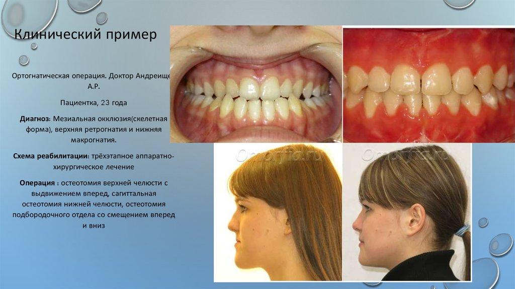Выдвижение челюсти дистракты челюстные