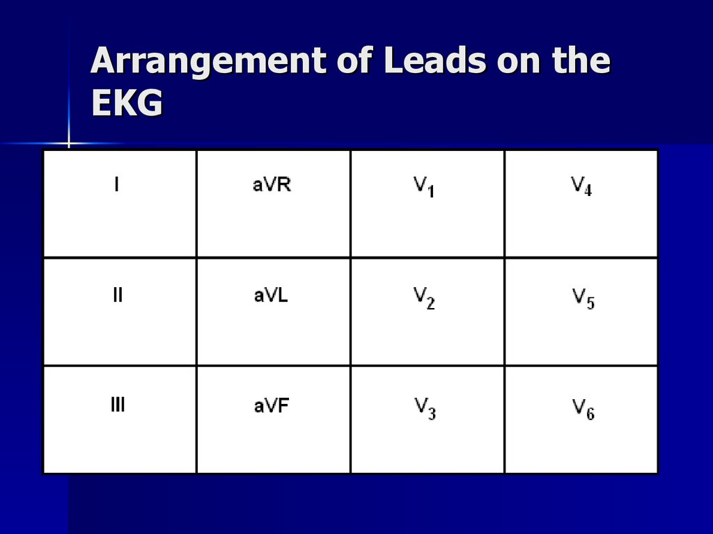 Arrangement of Leads on the EKG