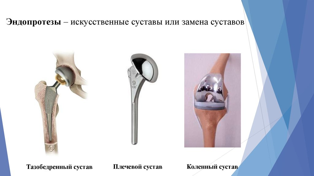 Эндопротез тазобедренного сустава дельта цена кости которые связаны друг с другом с помощью сустава