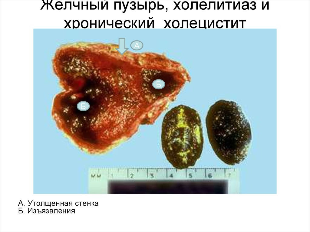 cholethiasis Gallstone disease remains one of the most common medical problems leading to surgical intervention every year, approximately 500,000 cholecystectomies are performed in the us cholelithiasis affects approximately 10% of the adult population in the united states it has been well demonstrated that.