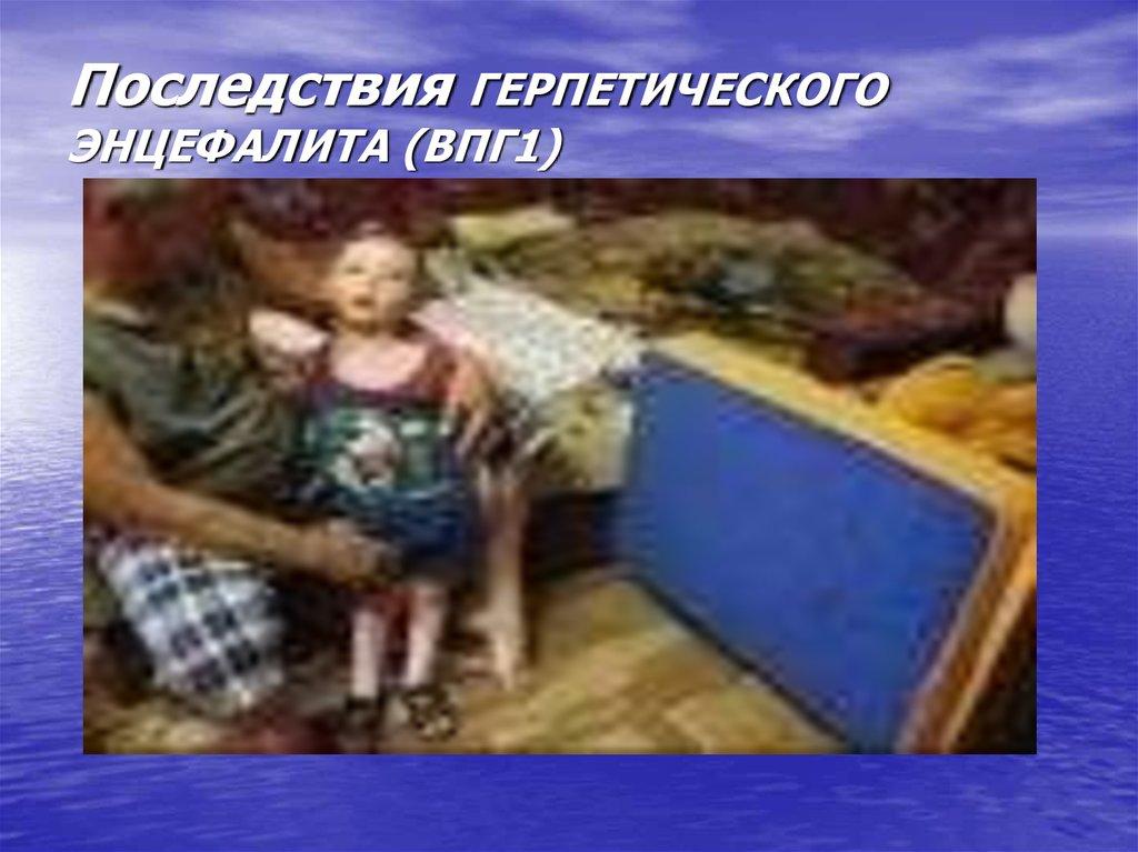 Последствия герпетического энцефалита