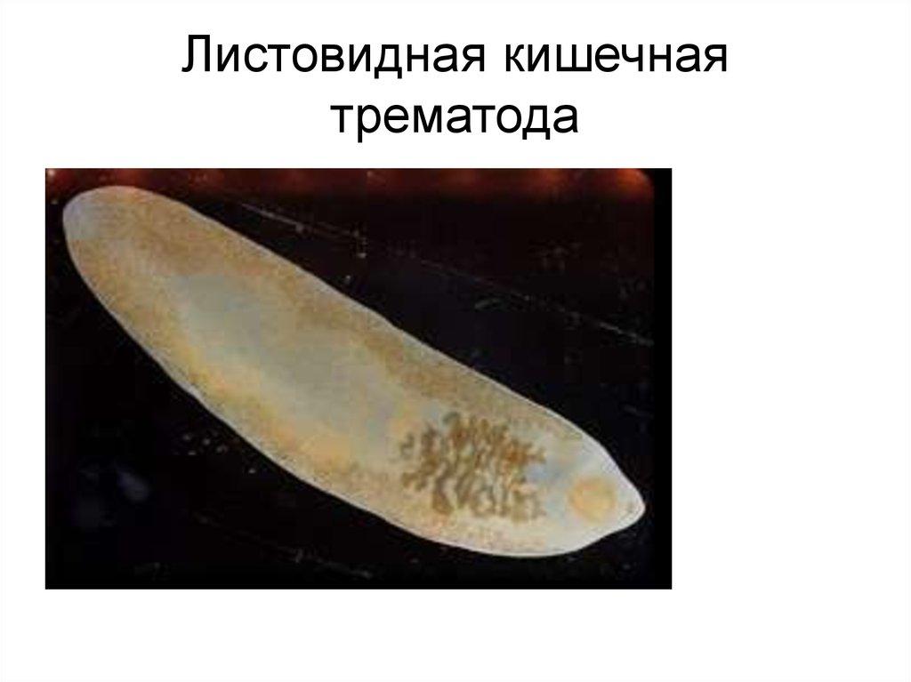 кишечная трематода фото лучших обогревателей для