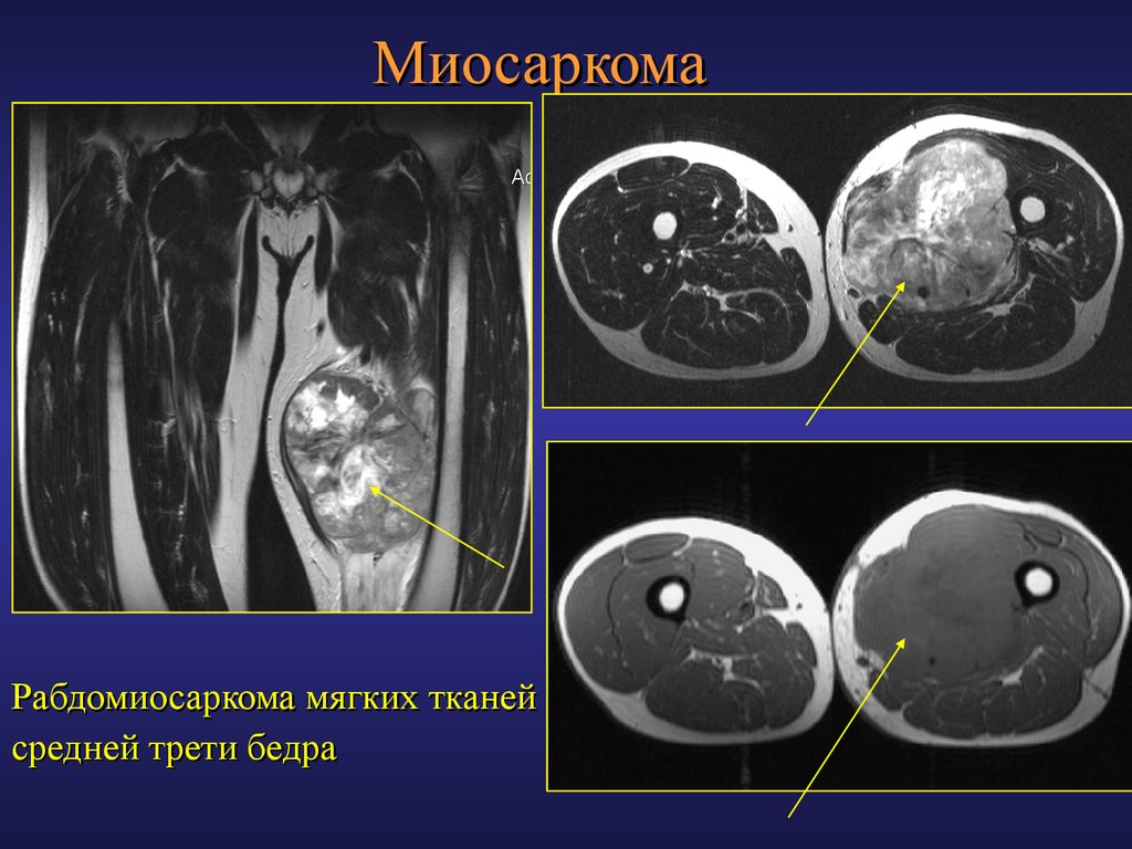 rhabdomyosarcoma essay Rhabdomyosarcoma: a rhabdomyosarcoma is a malignant tumour that arises in the skeletal muscles most tumours of this type are located in the leg or arm muscles a rhabdomyosarcoma may recur even after amputation of the involved extremity.
