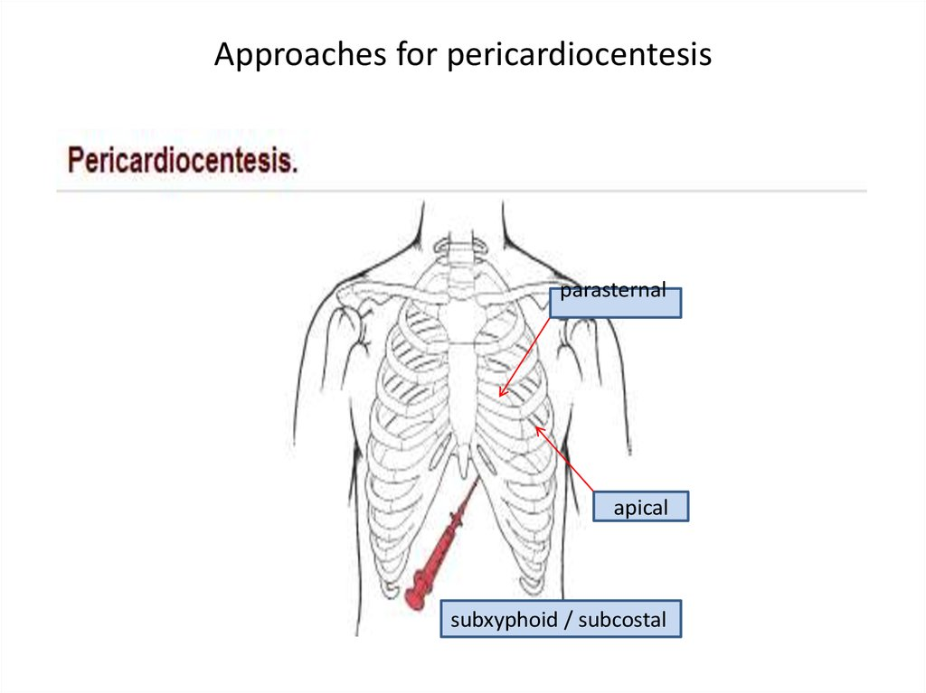 Approaches for pericardiocentesis
