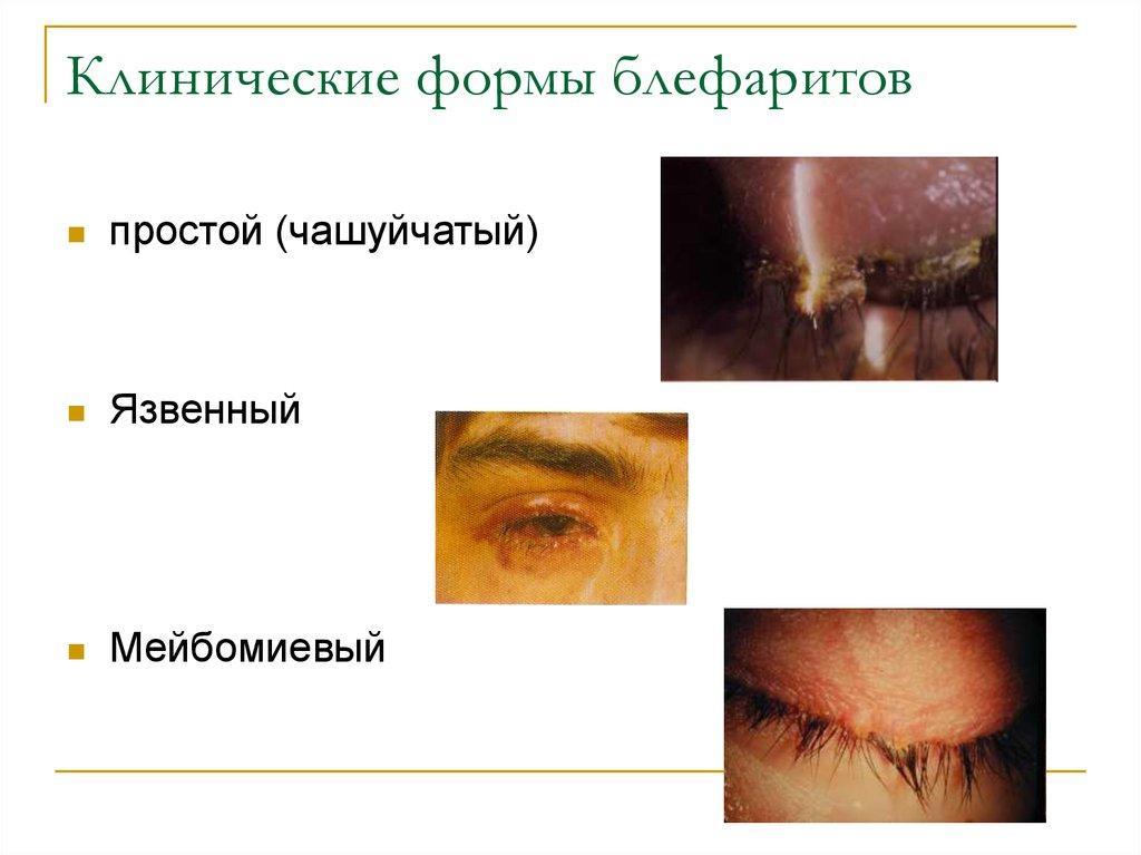аутогемотерапия при аллергии отзывы