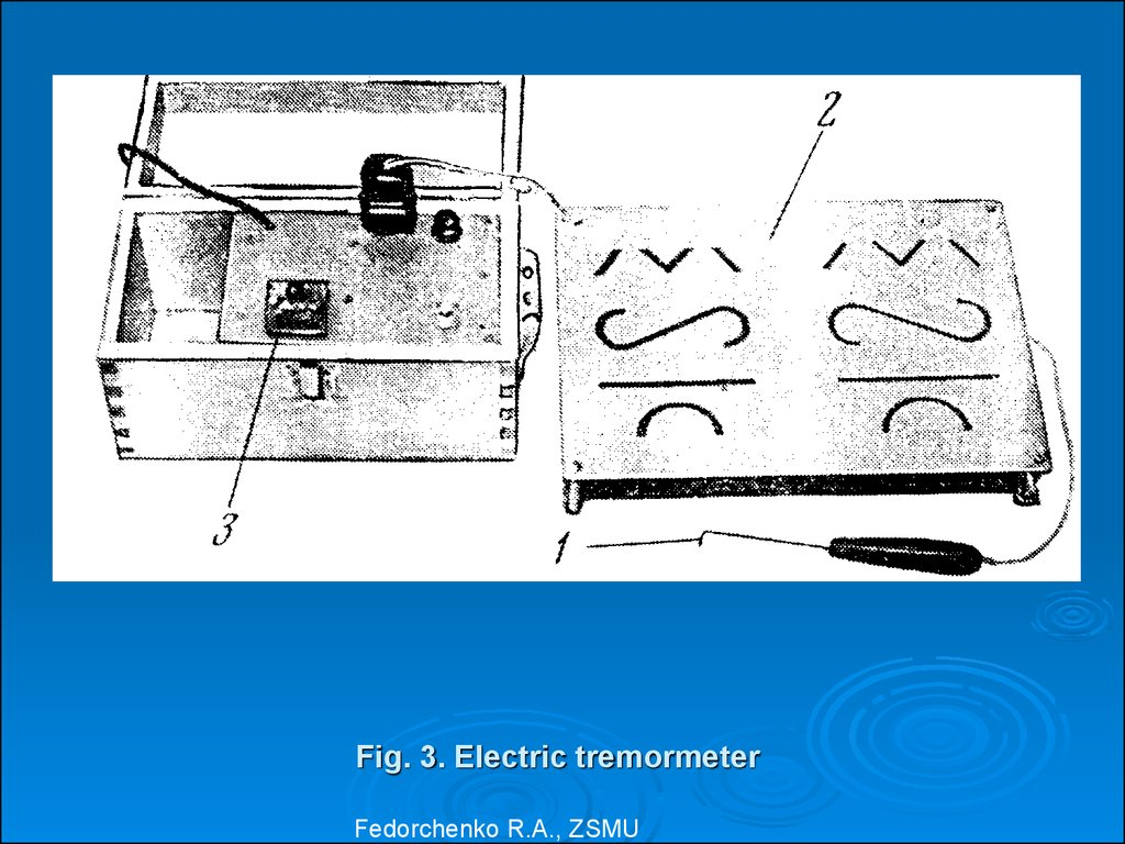 Fig. 3. Electric tremormeter