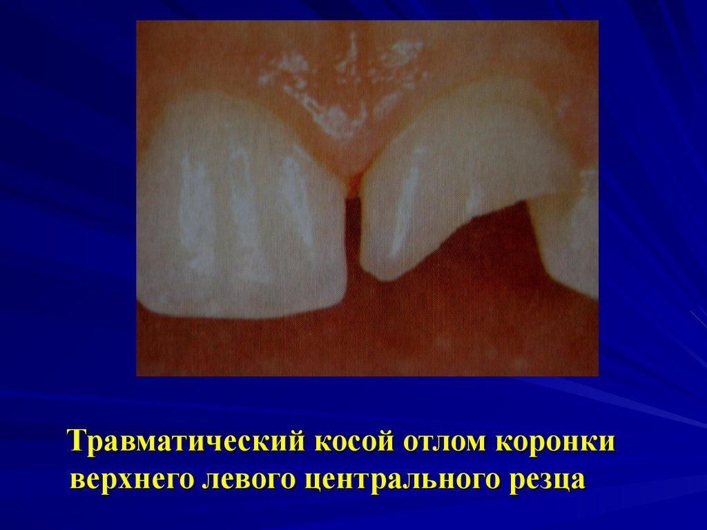 Киста зуба как лечить народными средствами