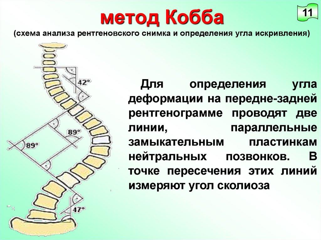 Измерение угла сколиоза по коббу
