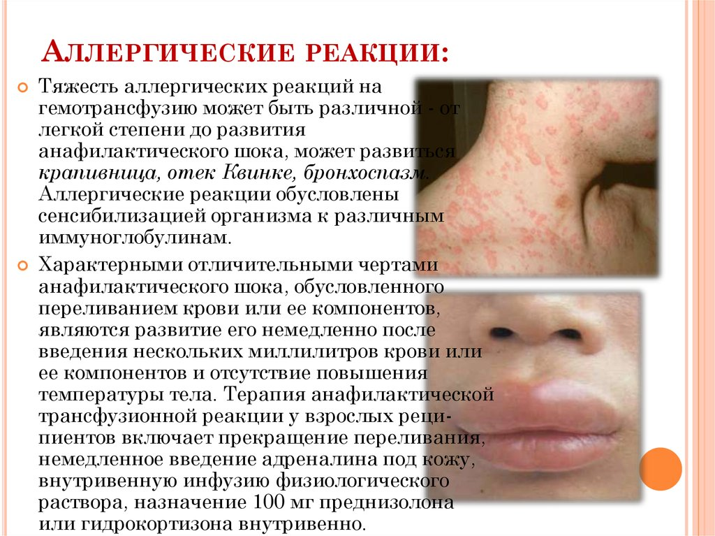 какие аллергические реакции могут быть от мукосата