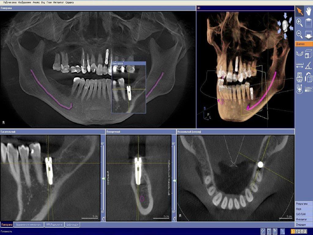 Реферат кт в стоматологии 9844