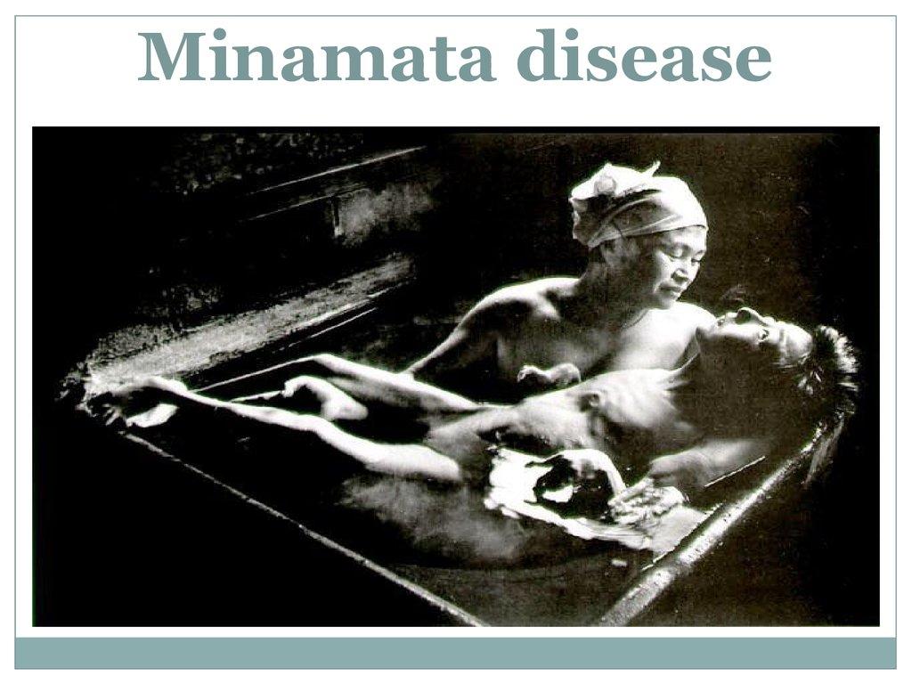 essay on minamata disease A: outline of minamata disease 3 pathological changes of methylmercury poisoning in the nervous system.