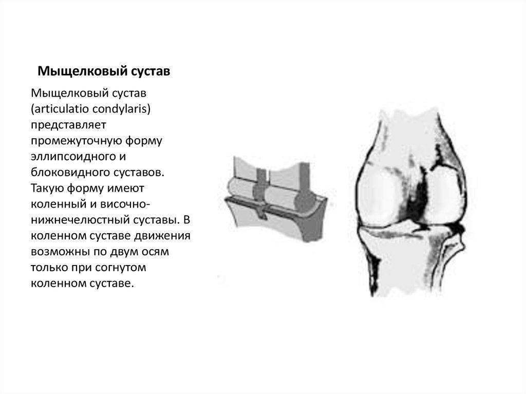 Мыщелковый сустав артропластика тазобедренного сустава после операции