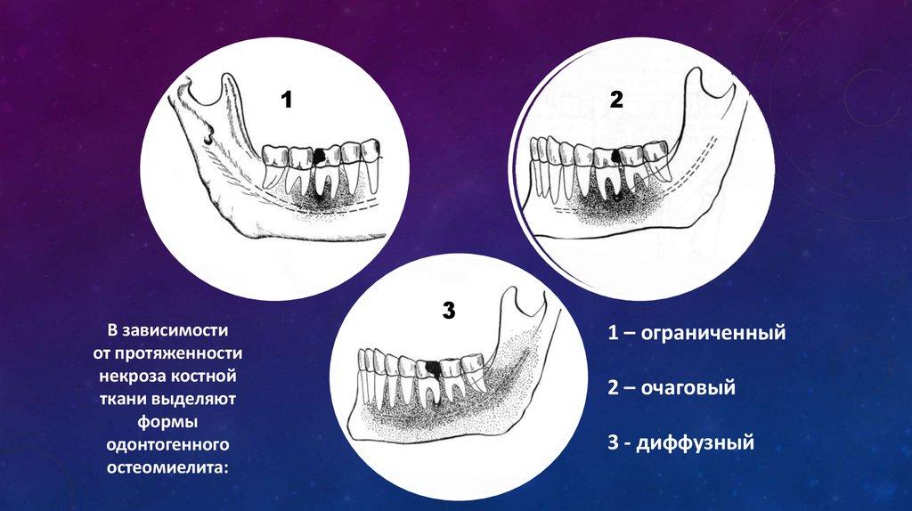 Реферат одонтогенный остеомиелит челюстей 8058