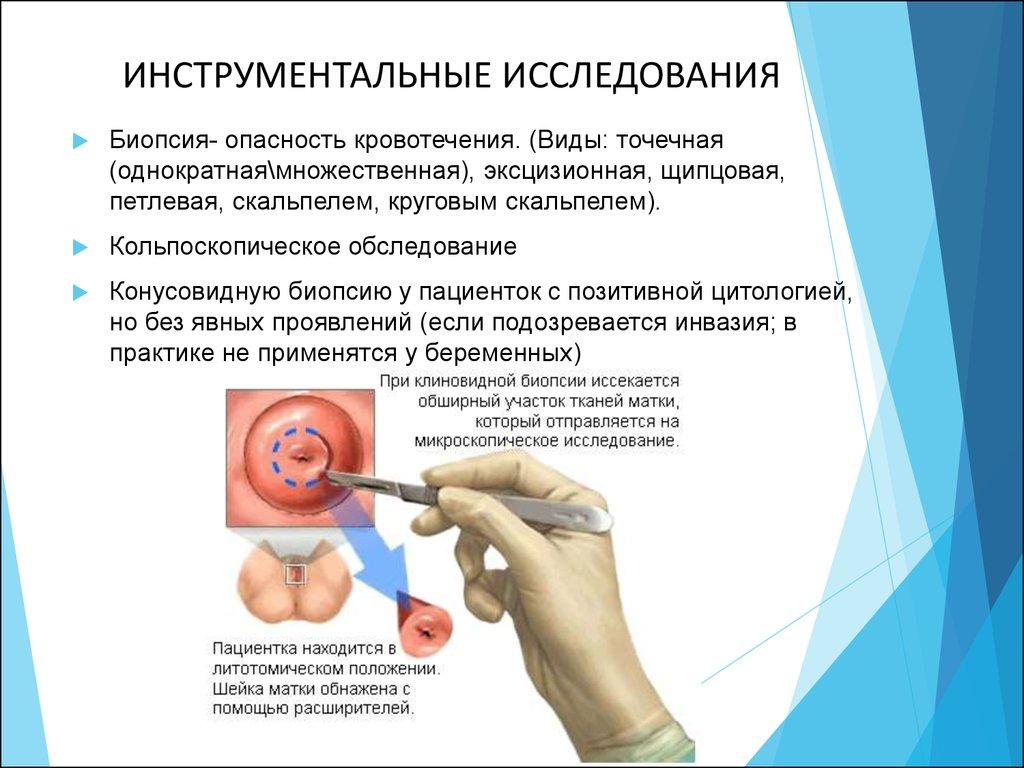 Гинекологические заболевания анализы
