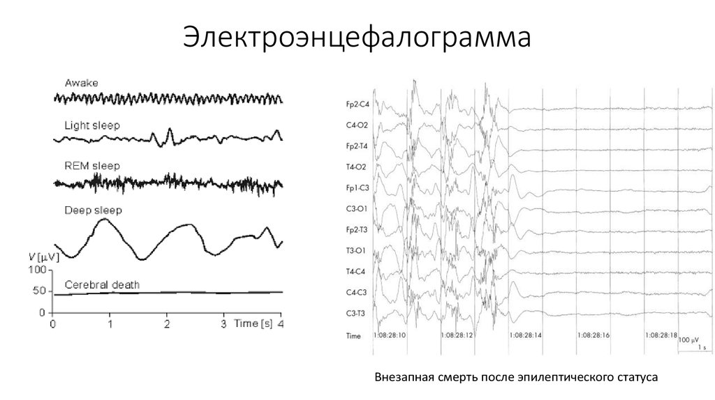 electroencephalogram report $3,90000 | notes: sales, means the sales volume of electroencephalogram equipment revenue, means the sales value of electroencephalogram equipment this report studies sales (consumption) of electroencephalogram equipment in europe market, especially in germany, france, uk, russia, italy, spain and benelux, focuses on top.