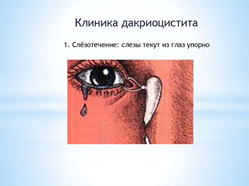 Что делать если грусные глаза