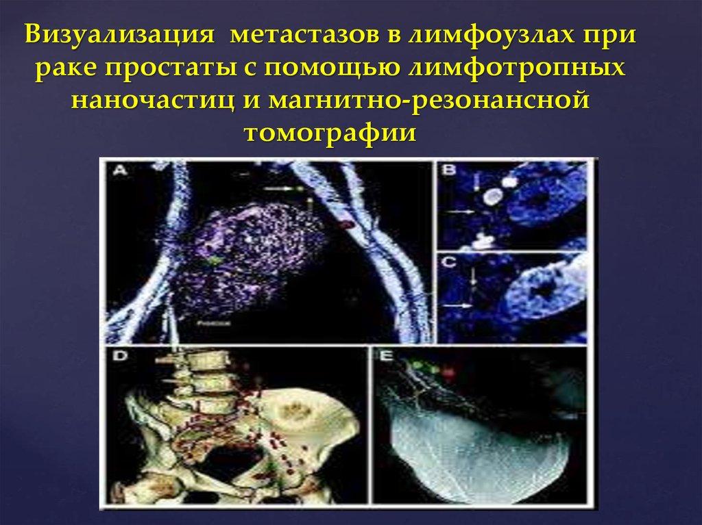Рак простаты с метастазами лимфоузлов