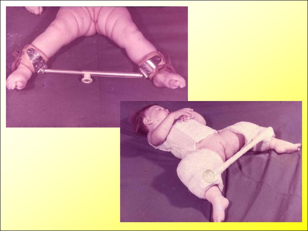 Врожденный вывих тазобедренного сустава шина виленского синдром сустава