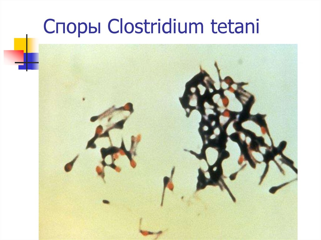 Споры Clostridium tetani