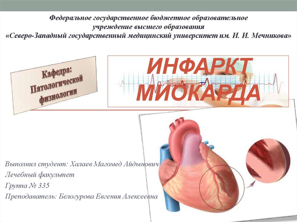 Патофизиология инфаркта миокарда реферат 4799