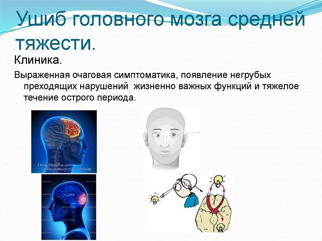 Ушиб головного мозга картинки кто