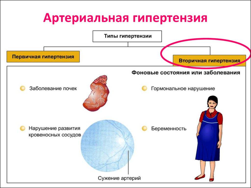 Гипертоническая болезнь симптомы лечение