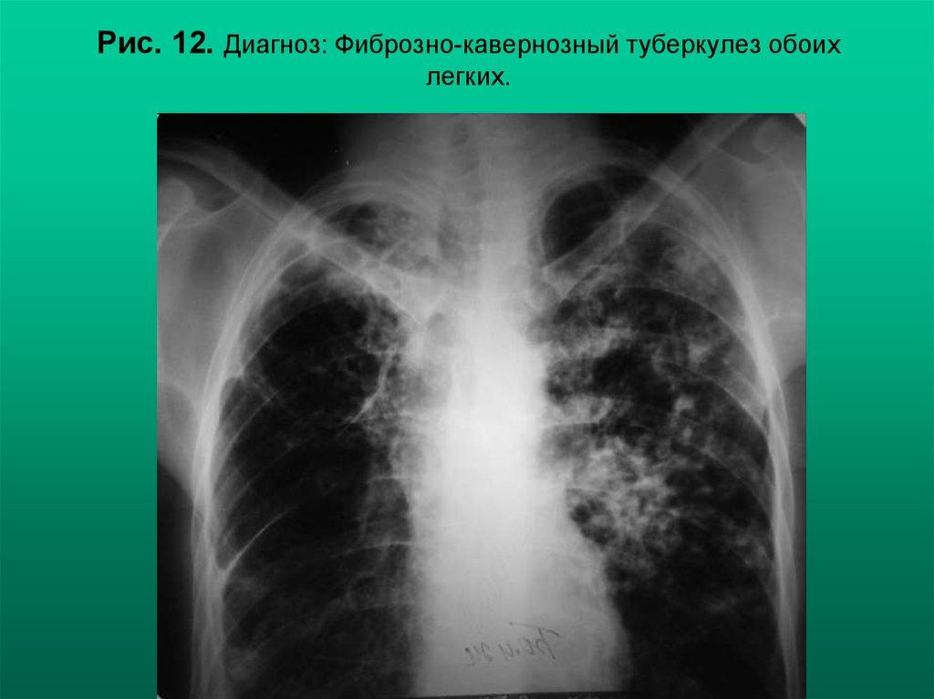 Туберкулез обоих легких