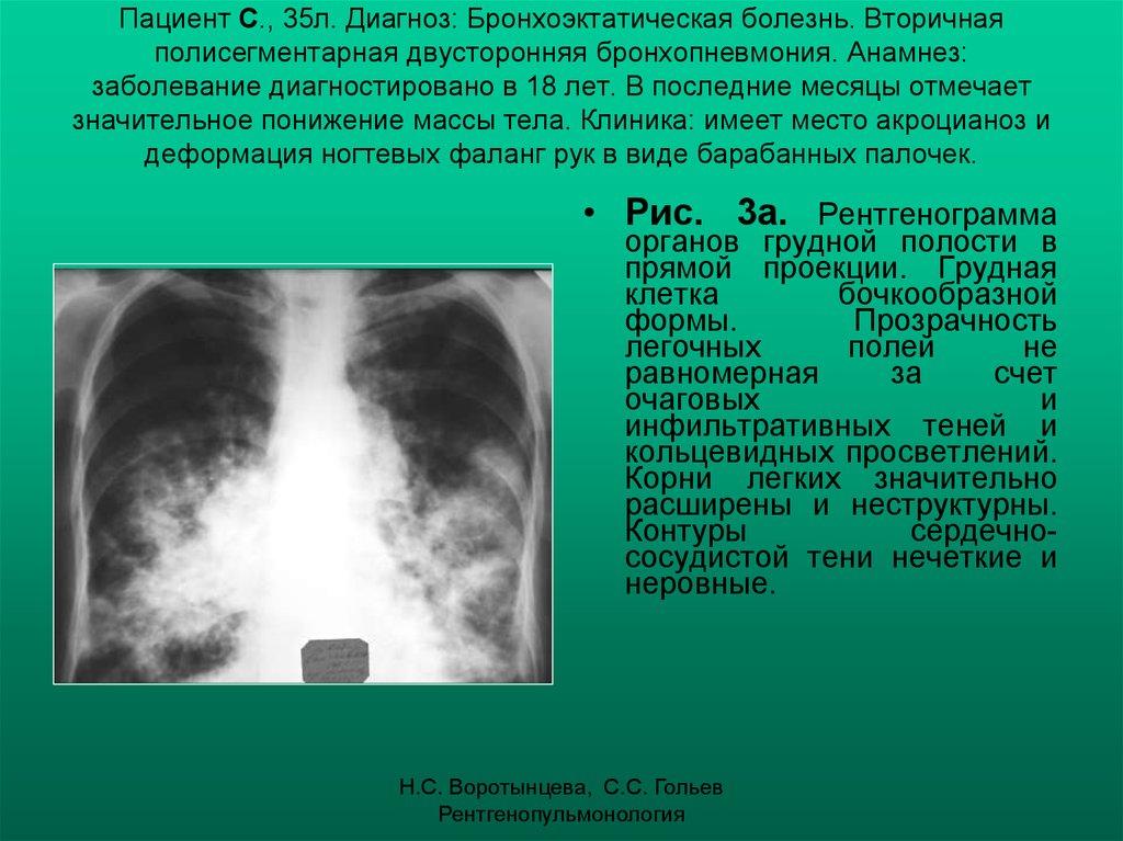 Бронхоэктатическая болезнь внутренние болезни
