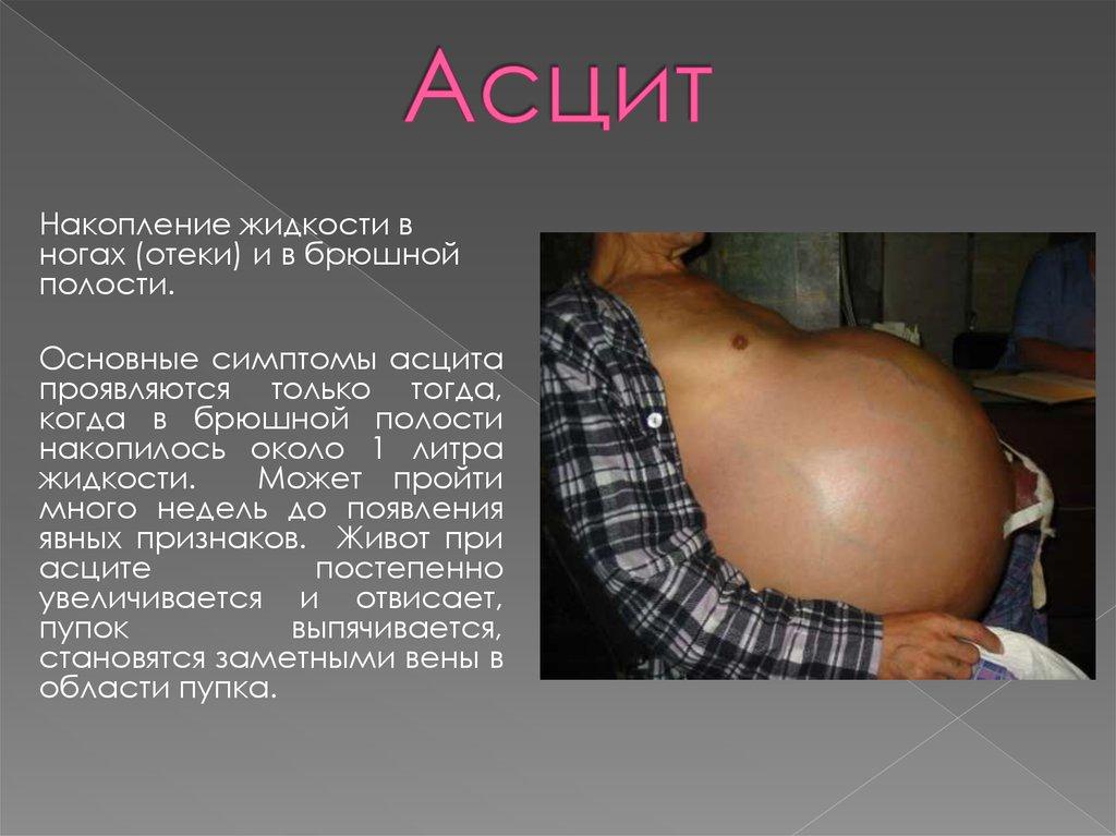 Сколько живут при асците брюшной полости