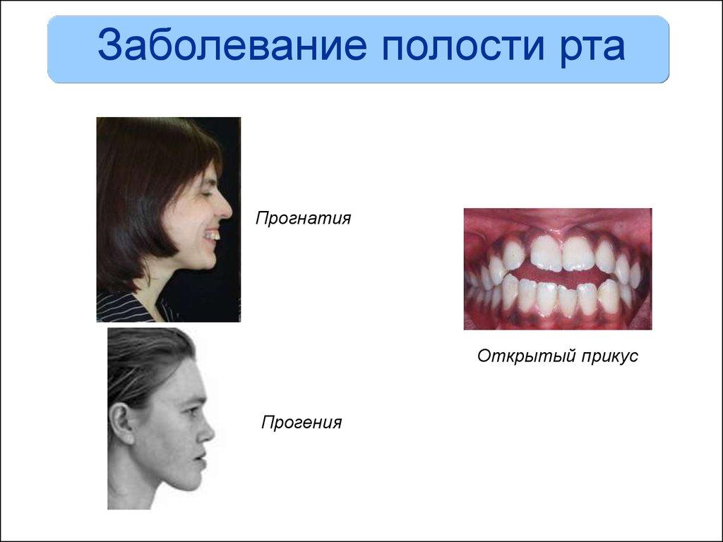 Виды заболевания полости рта