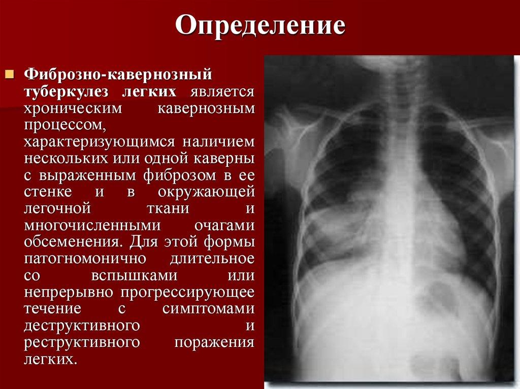 Каверна при туберкулезе