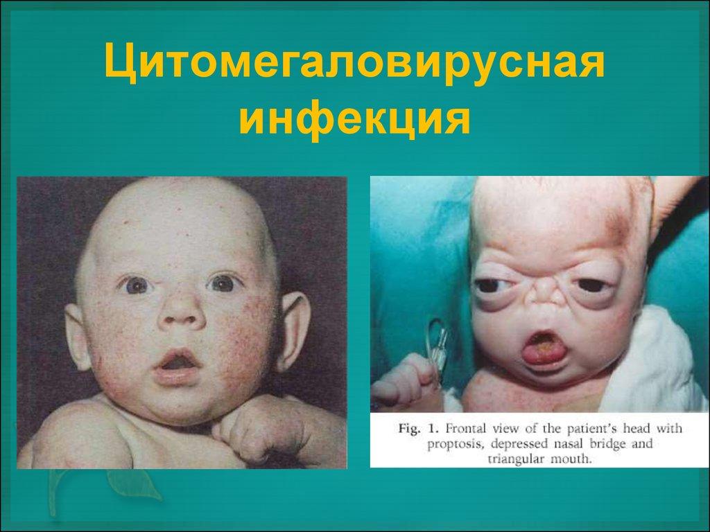 NORVEG разрабатывается, лимфоцитоз у детей причины высокой физической