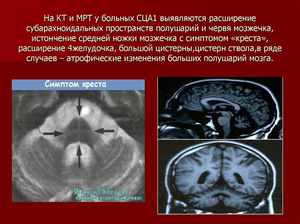 атрофия головного мозга у детей термобелья том