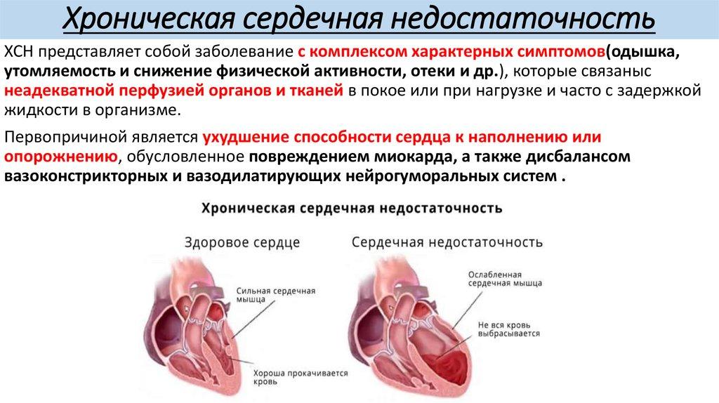 Головокружение при сердечных болезнях
