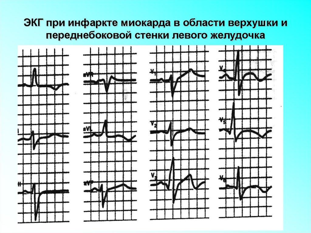 экг при инфаркте миокарда картинки пума сильно