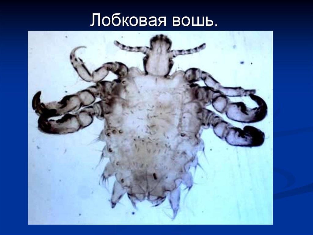 круглые черви паразиты человека презентация